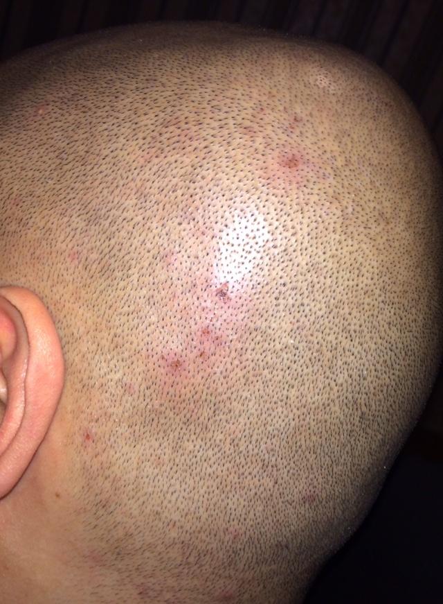 Apres 12 jours rasage de ma pussy recouverte de poil - 3 4